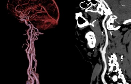 Carotid Stenosis and Soft Plaque
