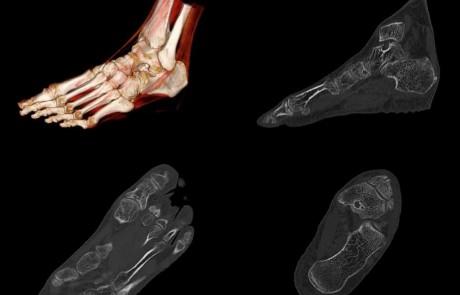 Cortical and Trabecular Bone