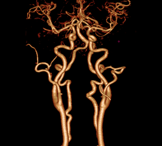 Carotid Arteries and Circle of Willis Study